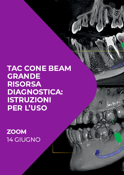 "Immagine di Webinar ""Tac cone beam grande risorsa diagnostica: istruzioni per l'uso"""